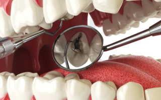 Пульпит зуба: что это такое, симптомы, лечение