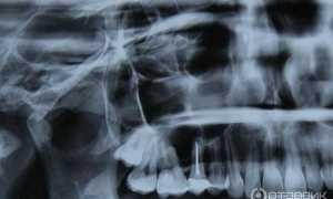Почему после лечения кисты болит зуб и как унять неприятные ощущения?