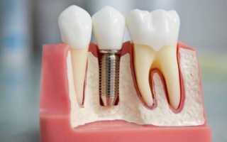 Виды анкерных штифтов в стоматологии и особенности их применения