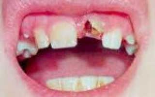 Зависимость выбора метода лечения от вида травмы зуба