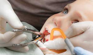 Особенности удаления молочных зубов у детей и рекомендации родителям