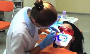 Механизм отбеливания зубов холодным светом и применяемые средства