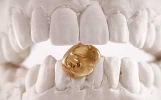 Золотые коронки на зубы: достоинства и недостатки, виды, изготовление, установка