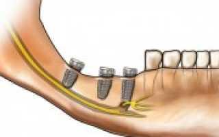 Как часто происходит повреждение нерва при имплантации зуба