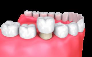 Можно ли ставить коронку на живой зуб ― доступно о главном