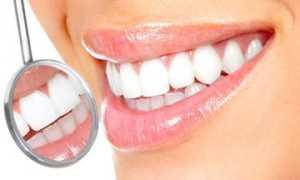 Лак для зубов: виды, состав, свойства, цены