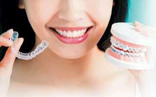 Ортодонтические трейнеры против брекет систем – достойная ли альтернатива