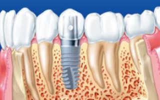 Как продлить срок службы имплантов зубов? Рекомендации