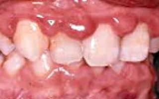 Гипертрофический гингивит: симптомы, лечение, прогноз