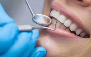 Основные аспекты лечения аллергии на зубные протезы