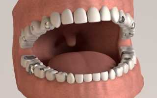 Начистоту об использовании амальгамы в стоматологии нового поколения