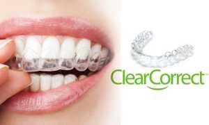 Капы Clearcorrect—комфортное и незаметное исправление положения зубов