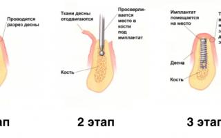 Преимущества одномоментной имплантации зубов