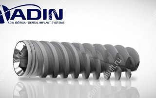 Возможности шести популярных моделей имплантов Adin