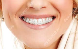 Подводные камни применения эстетических брекетов в ортодонтии