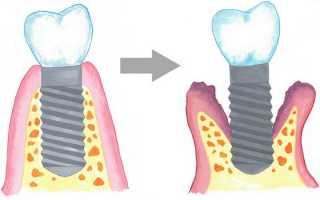 Четыре причины отторжения зубного импланта