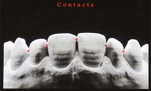 Тактика и системы для восстановления контактного пункта зуба