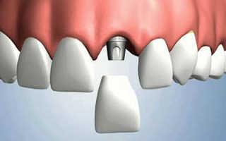 Какие этапы имплантации зубов предстоит пройти пациенту