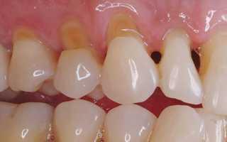 Клиновидный дефект зубов: что нужно знать про лечение