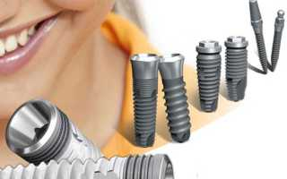 Подробно о плюсах и минусах односоставных зубных имплантатов