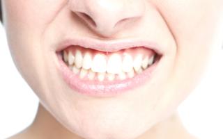 Что это за болячки во рту? Стоматит и гингивит: сходства и отличия