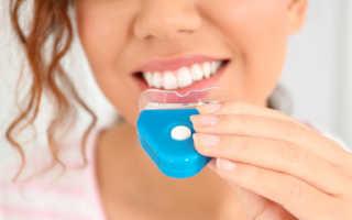 Вся правда об отбеливании зубов – причины, диагностика и лечение