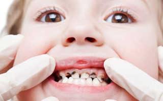 Современные методики лечения кариеса молочных зубов и их эффективность