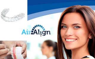 Семь достоинств капы Air Align