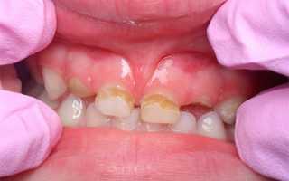 Нужно ли вашему ребенку серебрение молочных зубов?