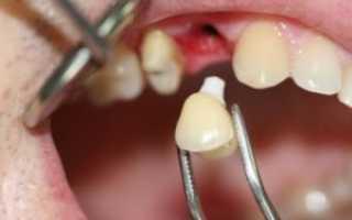 Что такое реплантация зуба и цель проведения процедуры