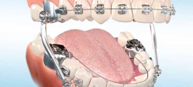 Что такое ФНТА и его назначение в стоматологии