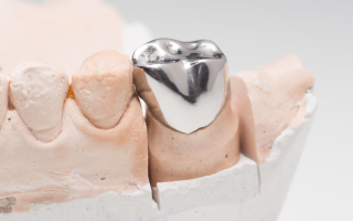 Металлические коронки – цены в Москве, стоимость установки коронки в стоматологическом центре Стомос