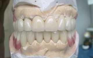 Все самое важное о полиуретановых зубных протезах