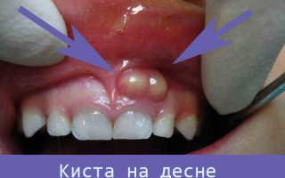 Киста зуба: симптомы и фото