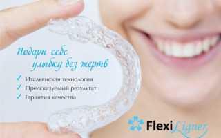 Действительно ли элайнеры Flexiligner могут сравниться с брекетами?