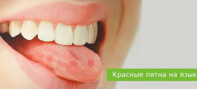 Красные пятна на языке: симптомы и лечение глоссита – ROOTT