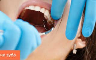 Памятка для пациента после удаления зуба: рекомендации, что можно и нельзя делать