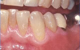 Современная технология получения стоматологической керамики