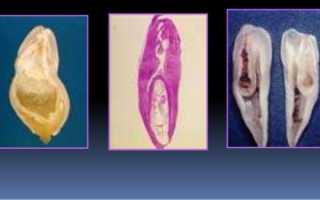 Предположительная этиология инвагинации зуба и методы ее лечения