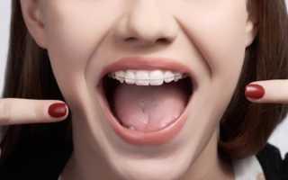 Что важно знать о сапфировых брекетах Perfect