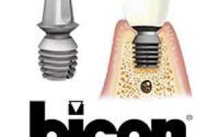 Типы, расположение и стоимость имплантатов American Bicon