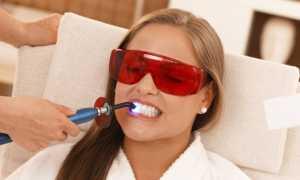 Отзывы о процедуре лазерного отбеливания зубов