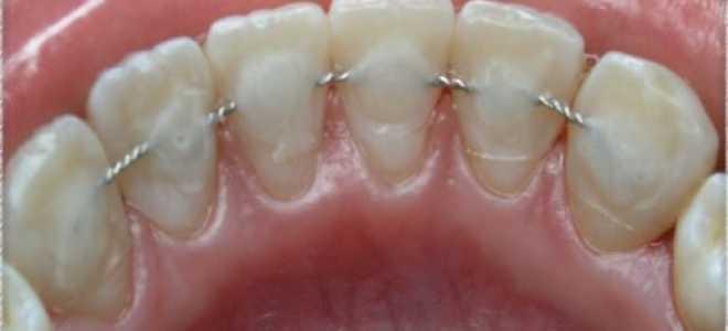 2 способа шинирования зубов при пародонтите: какой лучше?