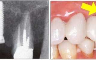 Вот что происходит, когда снимают швы после имплантации зубов. Как избежать неприятных последствий?