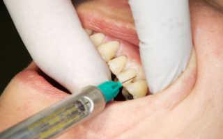 Перечень эффективных уколов в десны при пародонтозе