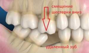 Причины развития феномена Попова Годона и способы его лечения