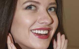 Люксниры – реставрация зоны улыбки за два посещения врача