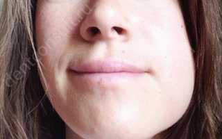 Осложнения после имплантации зубов: это может случиться с каждым