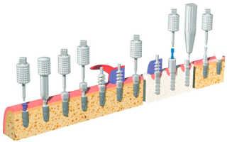 Пять уникальных достоинств имплантов Simpl Swiss от швейцарских производителей