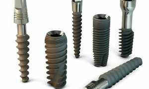 Особенности конструкции винтового импланта